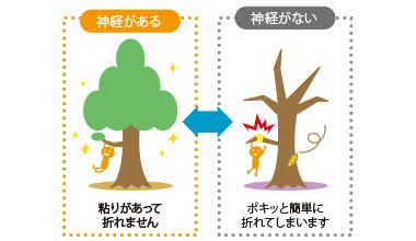 神経を取り除いた歯は、枯れた木の枝のように欠けやすくなります。