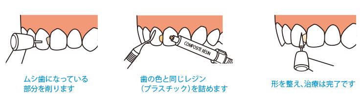1.ムシ歯になっている部分を削ります 2.歯の色と同じレジン (プラスチック)を詰めます 3.形を整え、治療は完了です