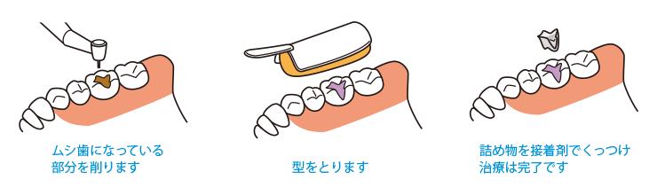 1.ムシ歯になっている部分を削ります 2.型をとります 3.詰め物を接着剤でくっつけ治療は完了です