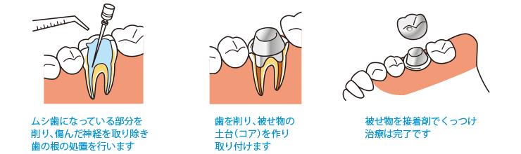 1.ムシ歯になっている部分を削り、傷んだ神経を取り除き歯の根の処置を行います 2.歯を削り、被せ物の土台(コア)を作り取り付けます 3.被せ物を接着剤でくっつけ治療は完了です