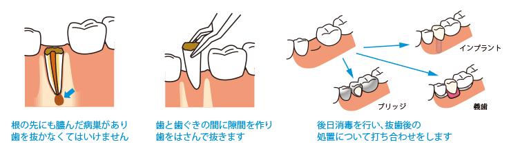 1.根の先にも膿んだ病巣があり歯を抜かなくてはいけません 2.歯と歯ぐきの間に隙間を作り歯をはさんで抜きます 3.後日消毒を行い、抜歯後の処置について打ち合わせをします